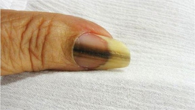 7 Nail Diseases that You Need to Watch Out for!